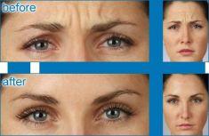 Botulinum toxin - Wrinkle Removal - Photo before - Dr Joni Feldman MBBS(MELBOURNE)  MFFACCS