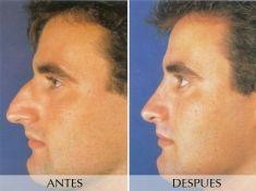 Cirugía de la nariz (Rinoplastia) - Foto Antes de - Clínica Planas