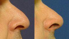 Miniinvazivní korekce vad, deformit a defektů obličeje - Metacrill - fotka před - MUDr. Jana Vybulková Zavadilová