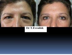 Blépharoplastie - Cliché avant - Dr Tayeb Essadok