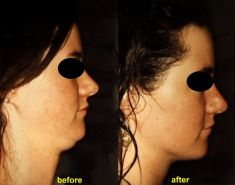 Liposuction - Photo before - Dr. Serban Porumb