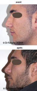 Rhinoplastie - Cliché avant - Dr Yohann Derhy