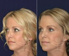 Non-Surgical Nose Job - Photo before - Mediestetik, skupina klinik