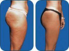 Karboxyterapia - Fotka pred - MEDICAL MKP