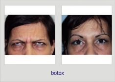 Botulinum toxin - Wrinkle Removal - Photo before - Dr. Lucian Fodor PhD