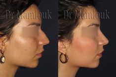 Dr Karim MAMLOUK - Cliché avant - Dr Karim MAMLOUK