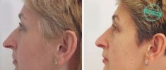 Rhinoplasty (Nose Job) - Photo before - Brandeis Clinic by Lucie Kalinová