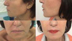 Lifting du visage - Cliché avant - Dr. Jean-Marie FAIVRE