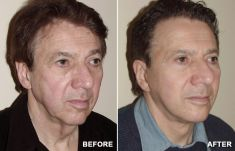 Facelift - Photo before - Anthony Geroulis M.D.