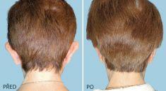 Operace uší (Otoplastika) - fotka před - MUDr. David Tomášek