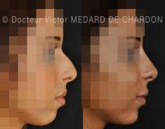 Augmentation des lèvres - Cliché avant - Docteur Victor Medard de Chardon