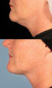 Laserová liposukce - SlimLipo - fotka před - MUDr. Jiří Ferra - Perfect Clinic