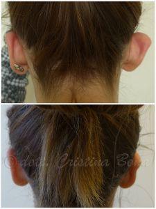 Operazione orecchie (Otoplastica) - Foto del prima - Dott.ssa Cristina Bona