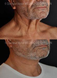 Lifting du cou - Cliché avant - Docteur Victor Medard de Chardon