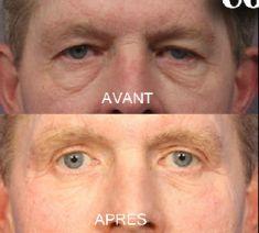 Blépharoplastie - Cliché avant - Dr Fabrice Poirier