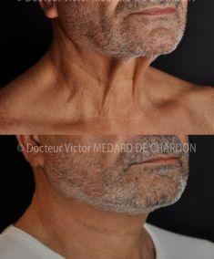 Lifting du visage - Cliché avant - Docteur Victor Medard de Chardon