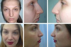 Dr. Sorin Parasca - Photo before - Dr. Sorin Parasca
