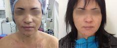 Lipofilling ou autogreffe de tissu graisseux - Cliché avant - Dr Chedi Bali