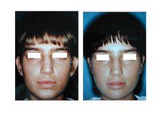 Operazione orecchie (Otoplastica) - Otoplastica sec. Mustardè (solo antelice)