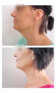 Facelift, SMAS facelifting - Fotka pred - ENVY klinika estetickej medicíny