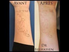 Dr Farès Belhassen - Laser PicoWay. Après 5 séances. La solution complète pour le détatouage. Pourquoi choisir le traitement PicoWay? - Suppression des tatouages, y compris les tatouages polychromes et ceux qui ont déjà été traités avec des lasers traditionnels.