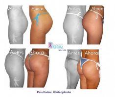Aumento y Modelado de Glúteos - Foto Antes de - Belleza y Salud Corporal