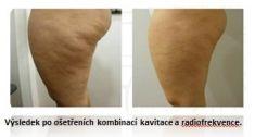 Kavitace ultrazvuková - Výsledek ošetření stehen a boků s celulitidou v kombinaci metod kavitace a radiofrekvence