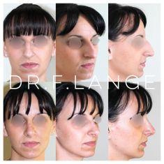 Rhinoplastie - #rhinoplastie #nez #profil #avantaprès #chirurgieesthetique #visage #rhinoplasty #nosejob #beforeafter #montpellier #rhinoplastyspecialist #specialisterhinoplastie #rhinoplastiemontpellier
