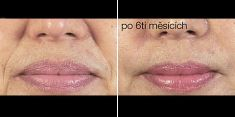 Dermal fillers - Photo before - Brandeis Clinic by Lucie Kalinová