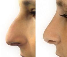 Plastika nosu (Rhinoplastika) - fotka před - MUDr. Jiří Paděra - Perfect Clinic