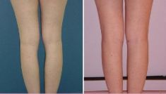 Buttock and calf plastic surgery - Photo before - Dr. Dobos Calin