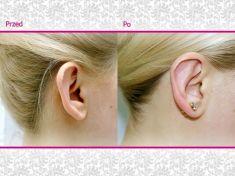Korekcja uszu (Otoplastyka) - Zdjęcie przed - Klinika Wiatroszak - ESTmedica