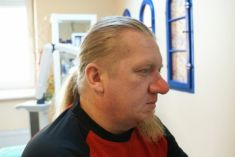 Laser procedures in aesthetic dermatology - Photo before - lek. med. Jacek Ściborowicz - MediVita