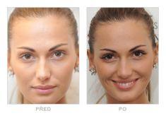 Lash extensions - Photo before - Klinika YES VISAGE - klinika estetické medicíny a plastické chirurgie