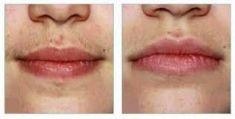 Laserová epilácia, depilácia - odstránenie chĺpkov - Fotka pred