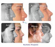 Cirugía de la nariz (Rinoplastia) - Foto Antes de - Belleza y Salud Corporal