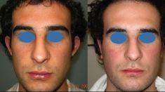 Operazione orecchie (Otoplastica) - Foto del prima - Dott. Salvatore Scandura M.D.