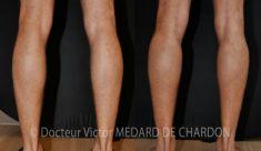 Chirurgie des fesses et des mollets - Cliché avant - Docteur Victor Medard de Chardon