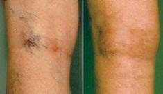 Sklerotizace (skleroterapie) - fotka před