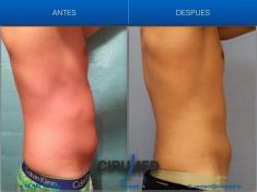 Cryolipolysis - Photo before - Cirumed Clinic