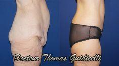 Body lift - Cliché avant - Dr Thomas Guidicelli