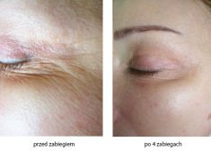 Radiofrequency Rejuvenation (Aluma, accent, TriPollar, Spa RF device, Re-Age) - Photo before - Bieńkowscy Clinic®