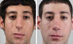 Cirugía de la nariz (Rinoplastia) - Foto Antes de - Dr. SERGIO ANGELES MONTAÑEZ Especialista en Rinoplastia