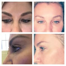 Eyelid surgery (Blepharoplasty) - Eyelid correction, also called blepharoplasty, is a procedure that rejuvenates lower and upper parts of eyes, removing puffiness, eye bags or wrinkles. The main aim of the procedure is dealing with the excess fat and skin caused by loss of firmness and elasticity. It is recommended mostly to adult men and women who wish to keep their young look for longer.  The surgery is usually performed under local anaesthesia. The incisions are made within natural contours of our eyes, so that the scars are as invisible as possible. They are closed with absorbable stitches. It itakes some time to see the results due to the swelling and bruising. Gradually, the skin around the eyes will become smoother and the face will look much younger.  The final effect is seen after several weeks, however it takes up to one year for the incision lines to fade within the natural contours of our eyes. To some extent, the results are permanent, however with time new aging signs will appear. Therefore, it is necessa