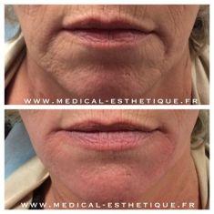 HIFU thérapie (lifting médical) - Cliché avant