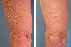 Thermage Skin Tightening - Photo before - Mediestetik, skupina klinik
