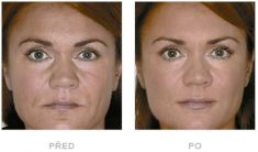 Výplně na bázi kyseliny hyaluronové - fotka před - Klinika YES VISAGE - klinika estetické medicíny a plastické chirurgie