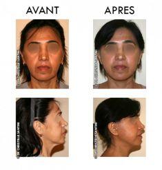 Lifting du visage - Cliché avant - Dr Christelle Santini