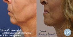 Lifting du visage - Cliché avant - Dr Sylvain David