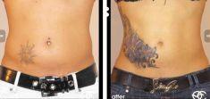 Liposucción - Foto Antes de - Dr. Kai Oliver Kaye